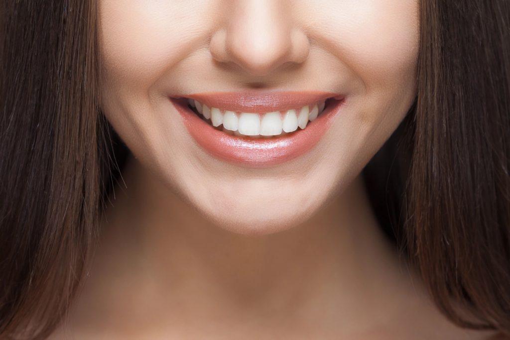 Как сделать улыбку идеальной