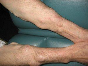 Жировик на руке под кожей: причины и симптомы - как избавиться