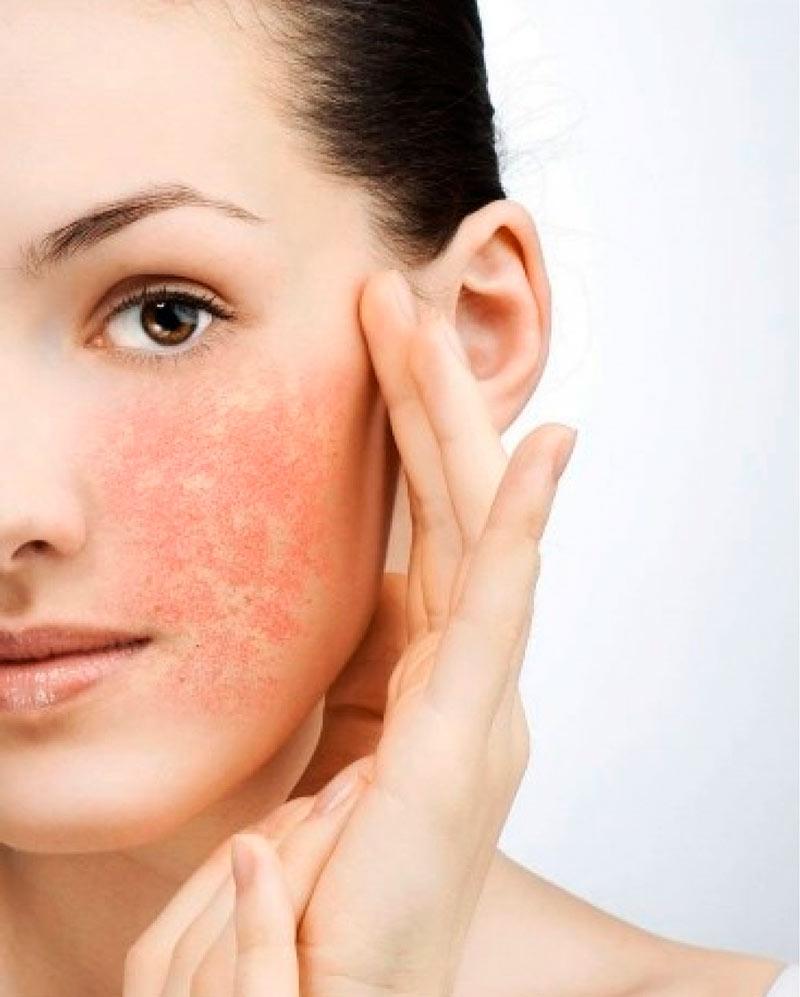 Уход за чувствительной кожей лица и проблемной, жирной. Средства по уходу