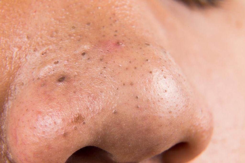 Черные точки или комедоны на носу: способы избавления