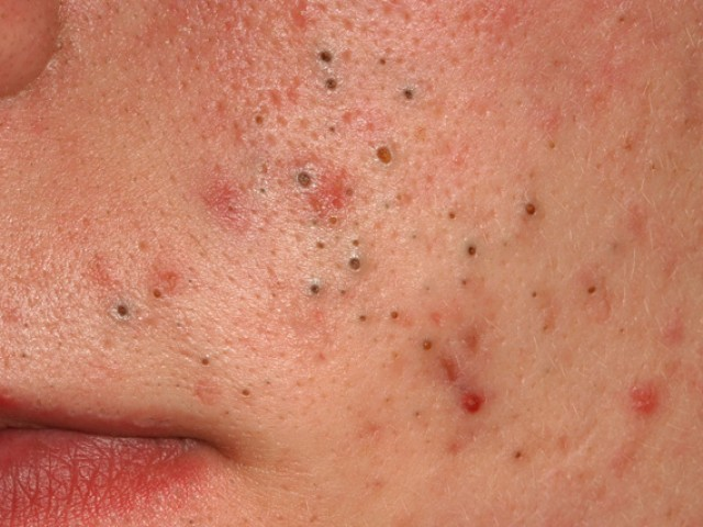 Эфирные масла от прыщей на лице: самый эффективный состав, способы применения