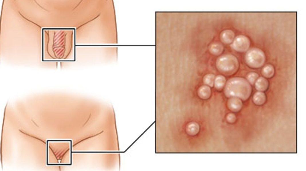 Простатит сыпь на головке enterobacter cloacae и простатит