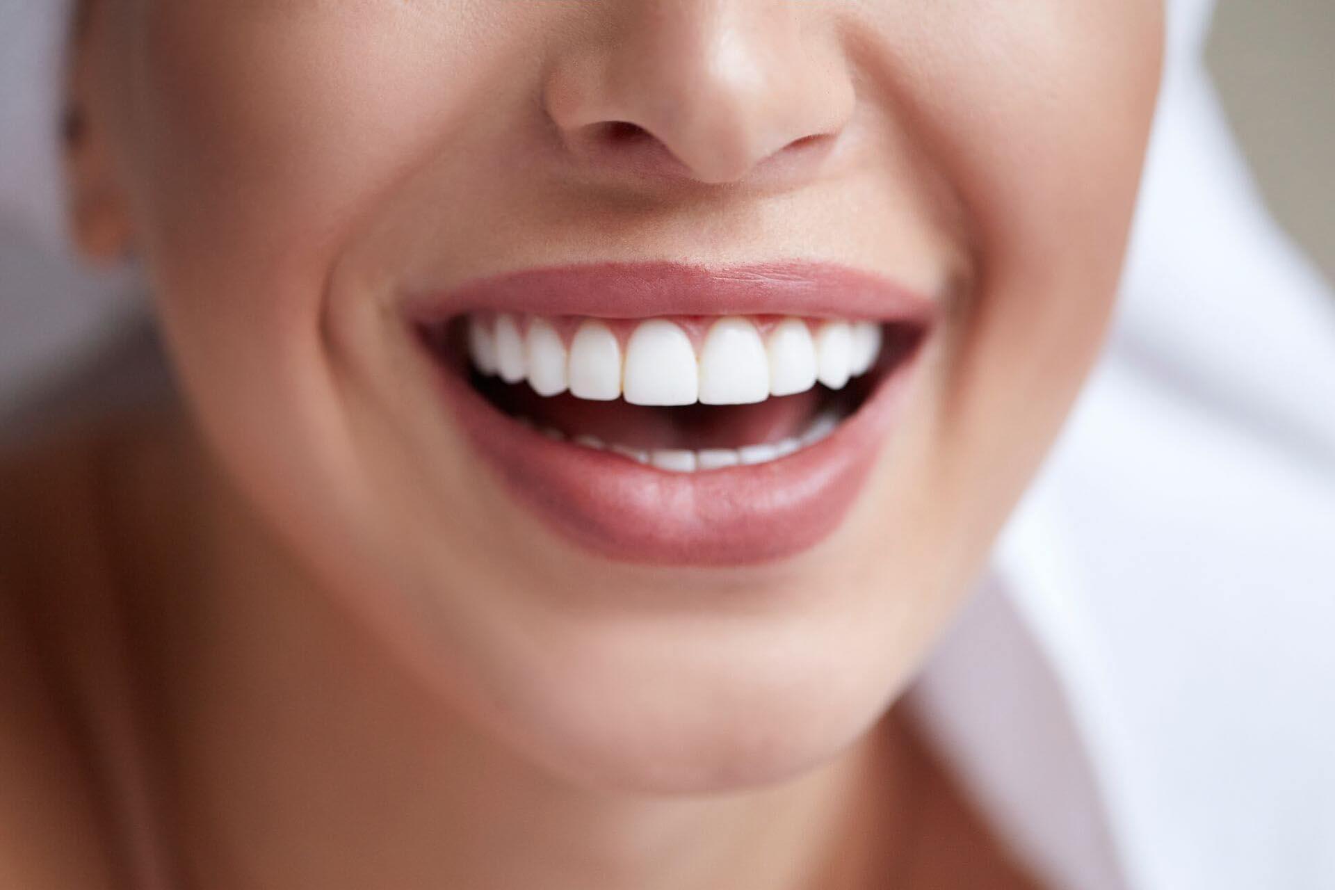 наш фото зубов с винирами имеет примерно такое